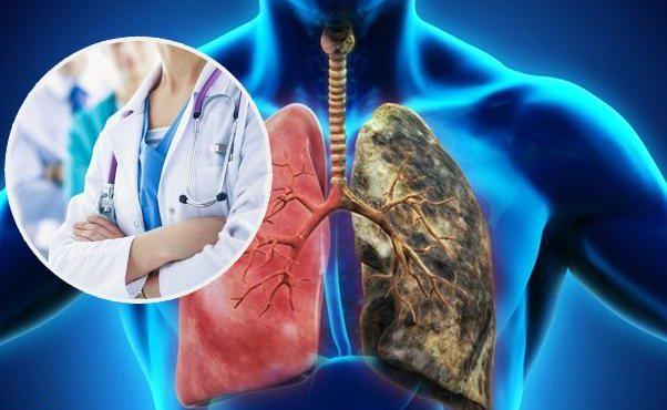 Эффективное и своевременное лечение рака легких