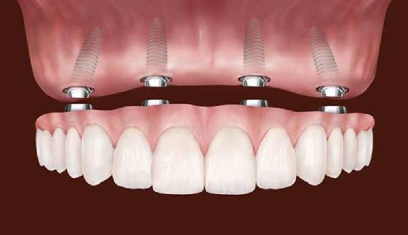 Новое слово в эстетической стоматологии