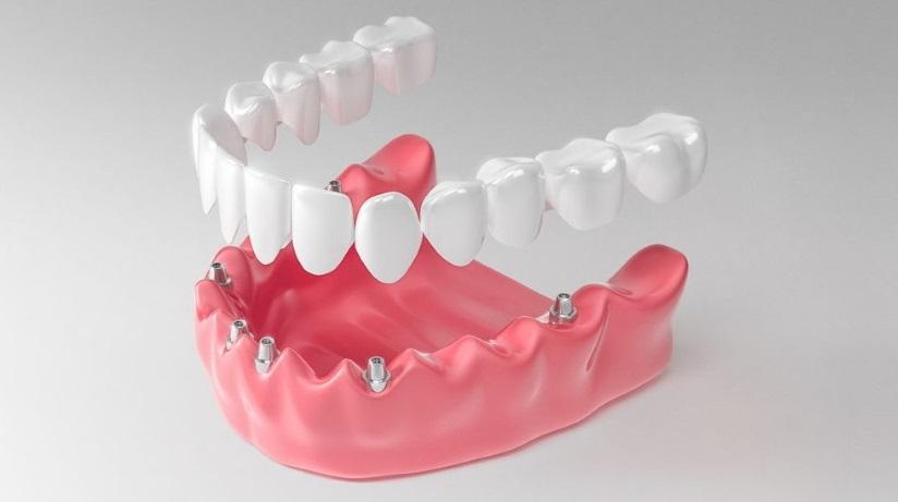 Современные методы имплантирования зубов