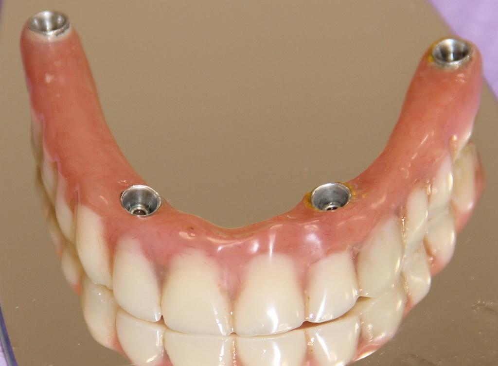 Имплантация зубов при полном их отсутствии