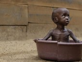 В прошлому году 17 миллионов детей страдали от истощения - ФАО