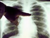 Британия отчиталась о наименьшем суточном приросте смертей от COVID-19 за три недели