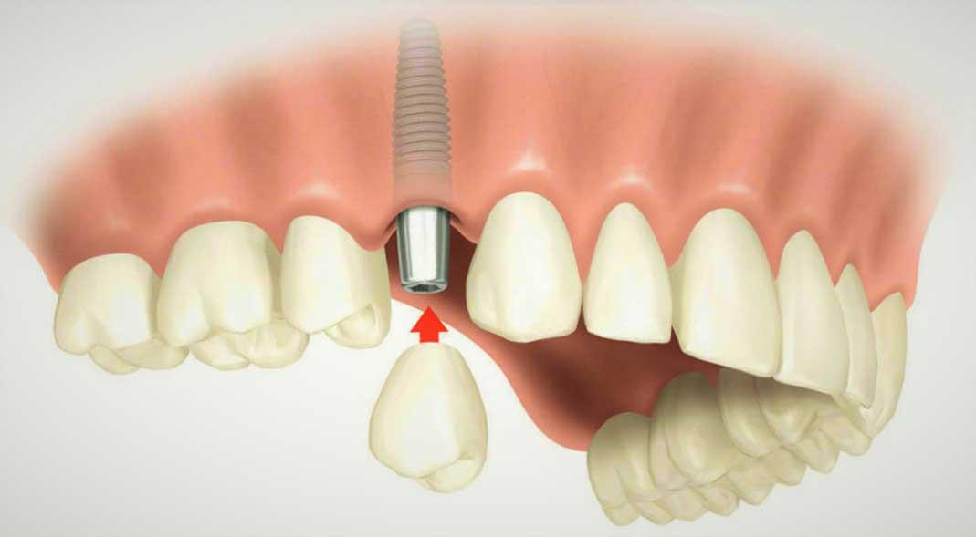 Имплантация зубов в Москве