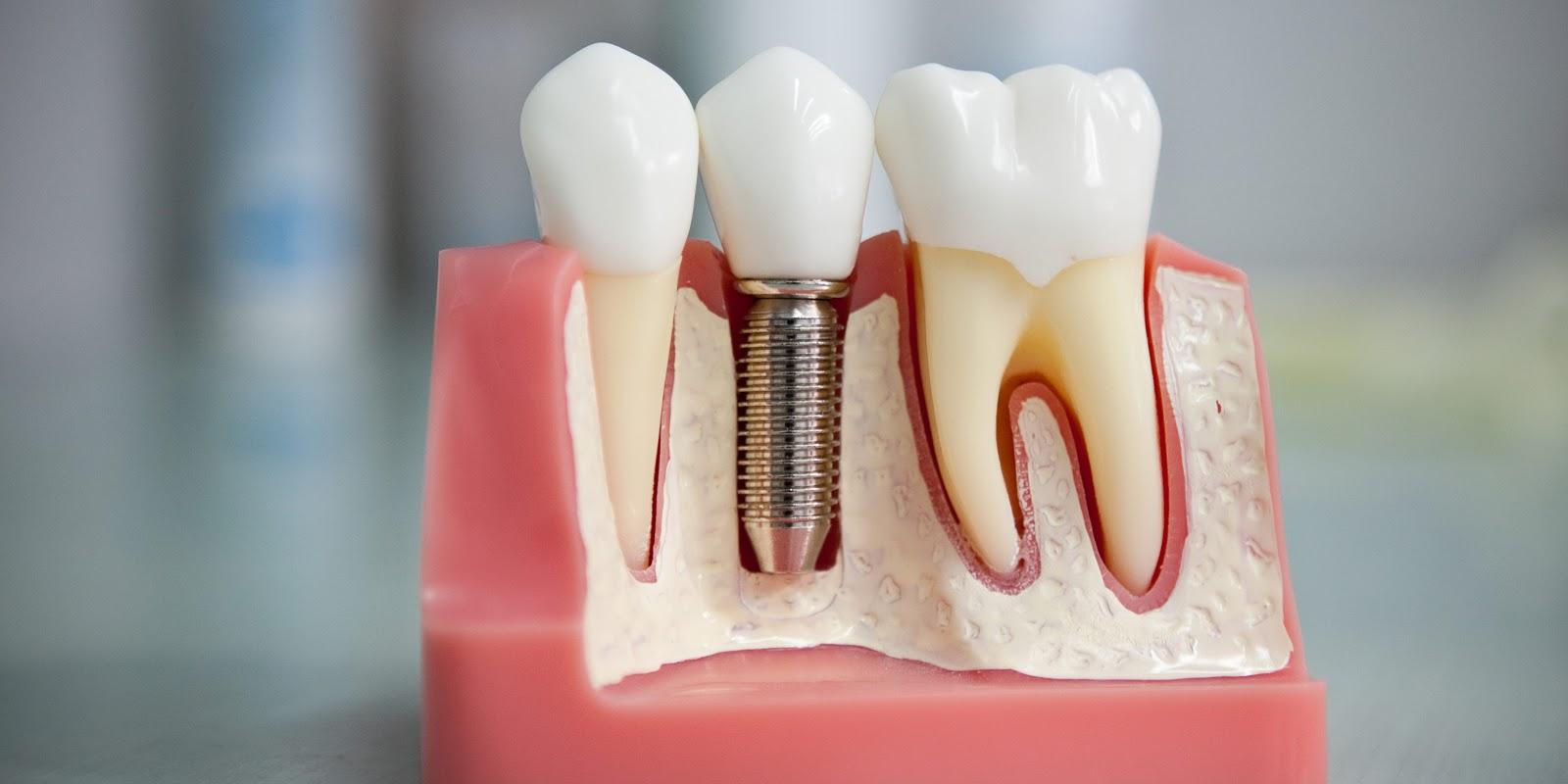 Услуги стоматолога в Москве